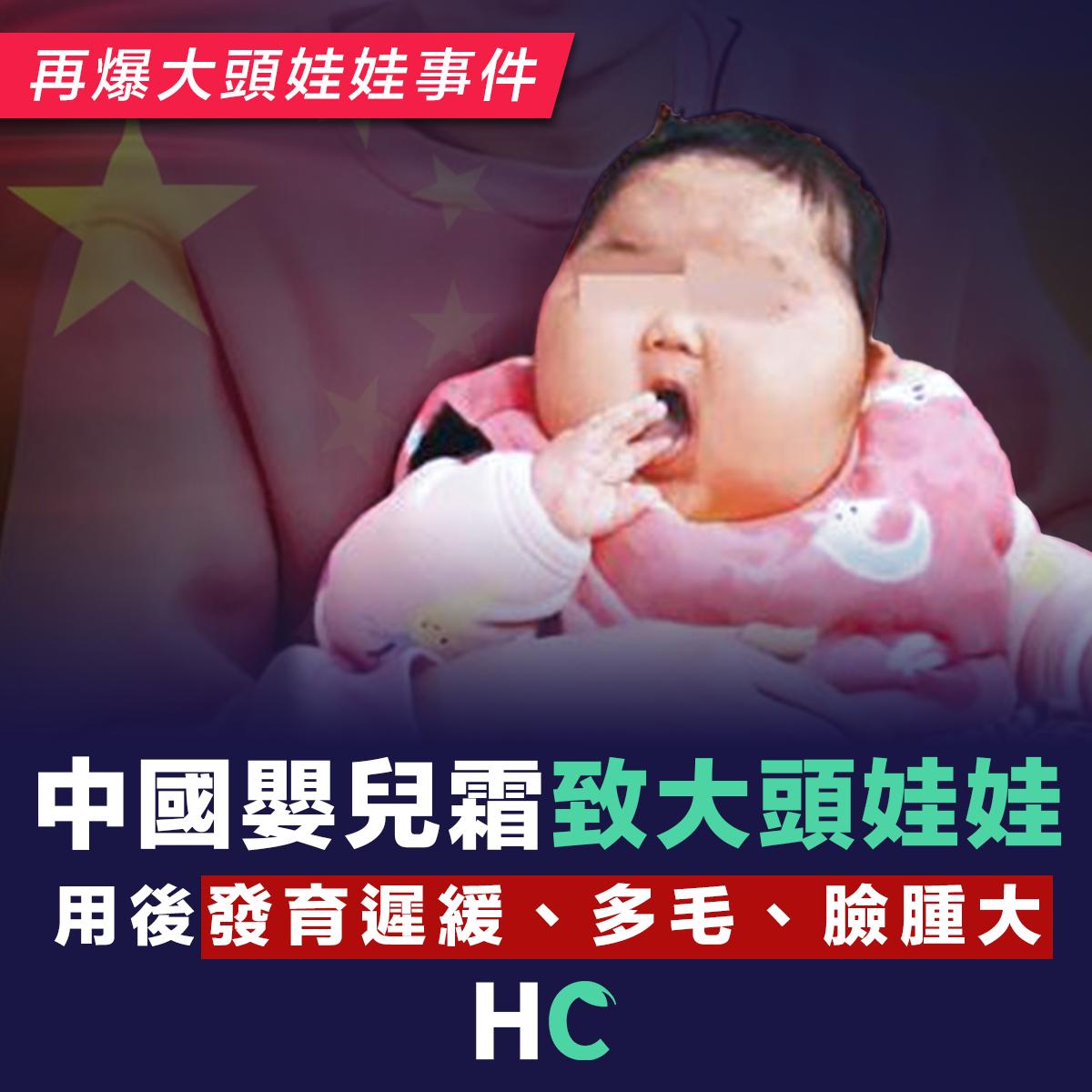 中國爆嬰兒霜大頭娃娃事件 用後發育遲緩、多毛、臉腫大