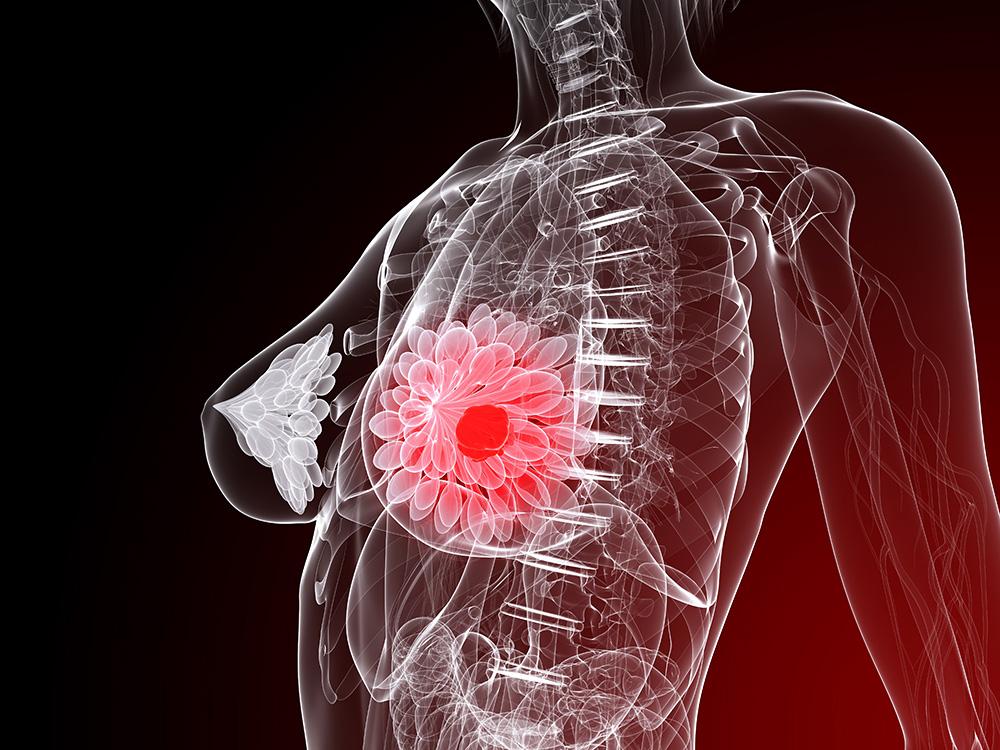 乳腺癌與卵巢癌