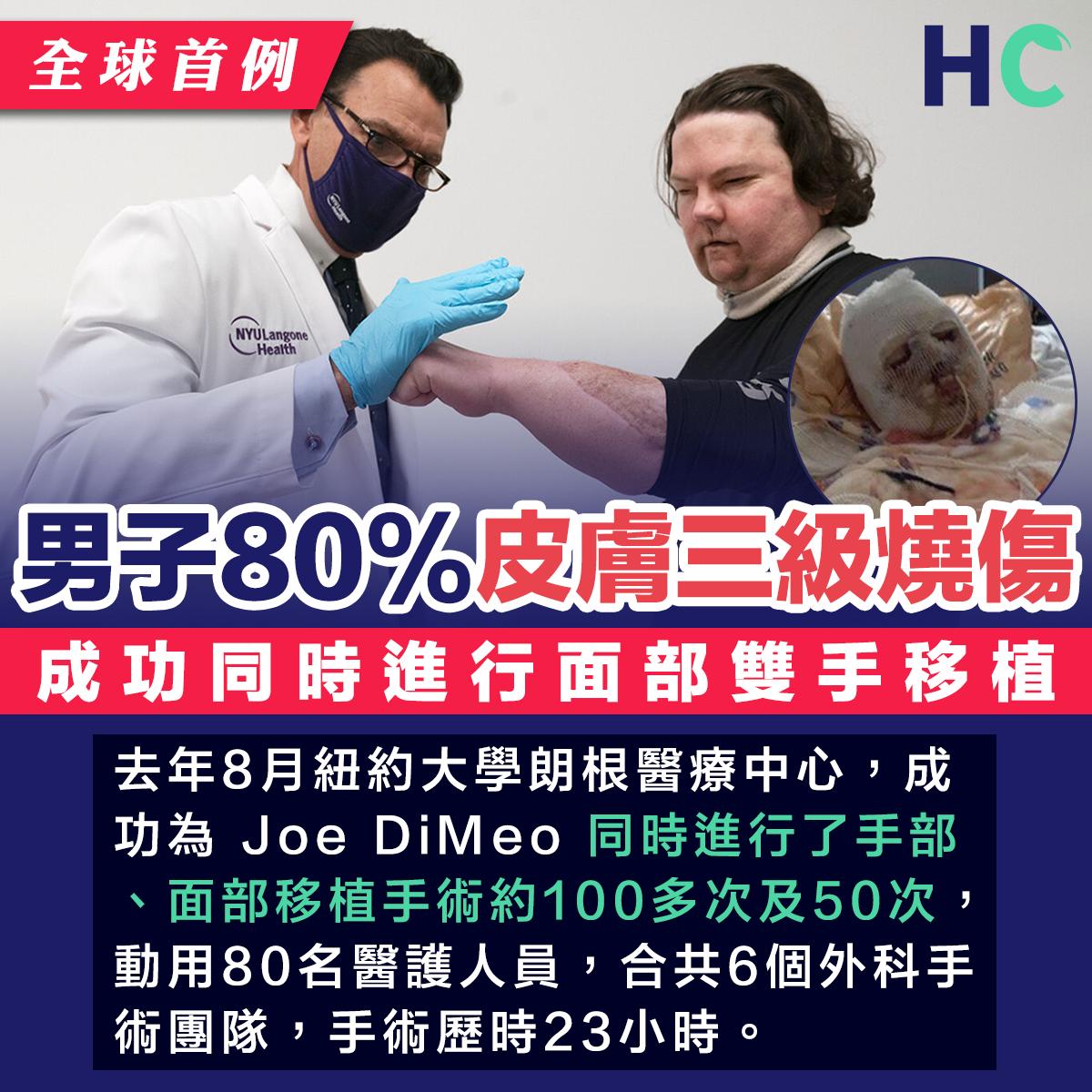 男子80%皮膚三級燒傷 成功同時進行面部雙手移植