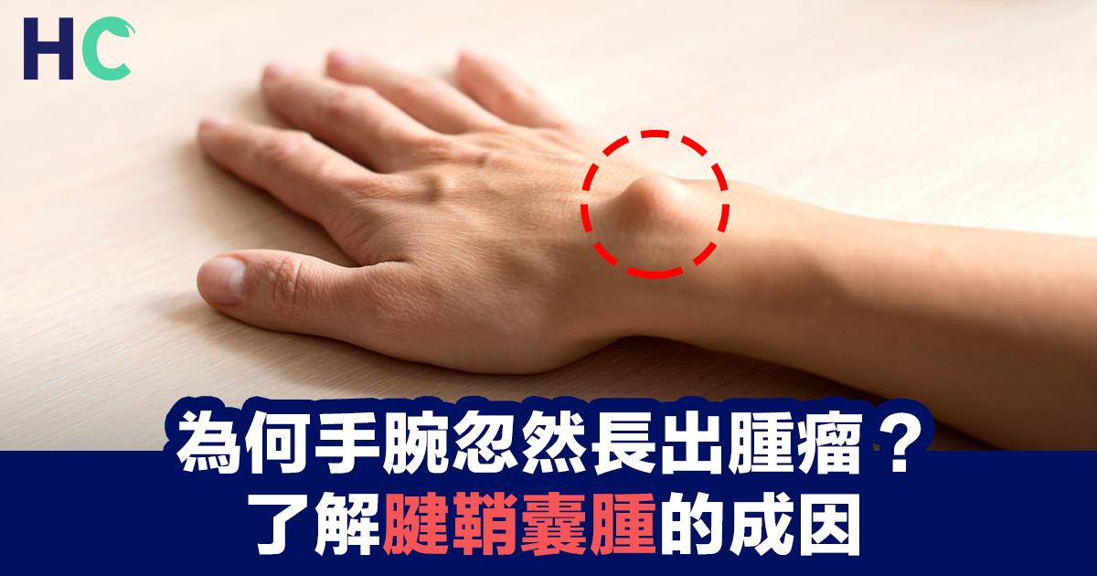 為何手腕忽然長出腫瘤?了解腱鞘囊腫的成因