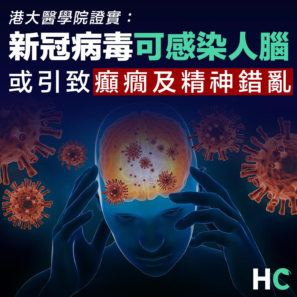 【#新型肺炎】港大證新冠病毒可感染人腦 或致癲癇精神錯亂