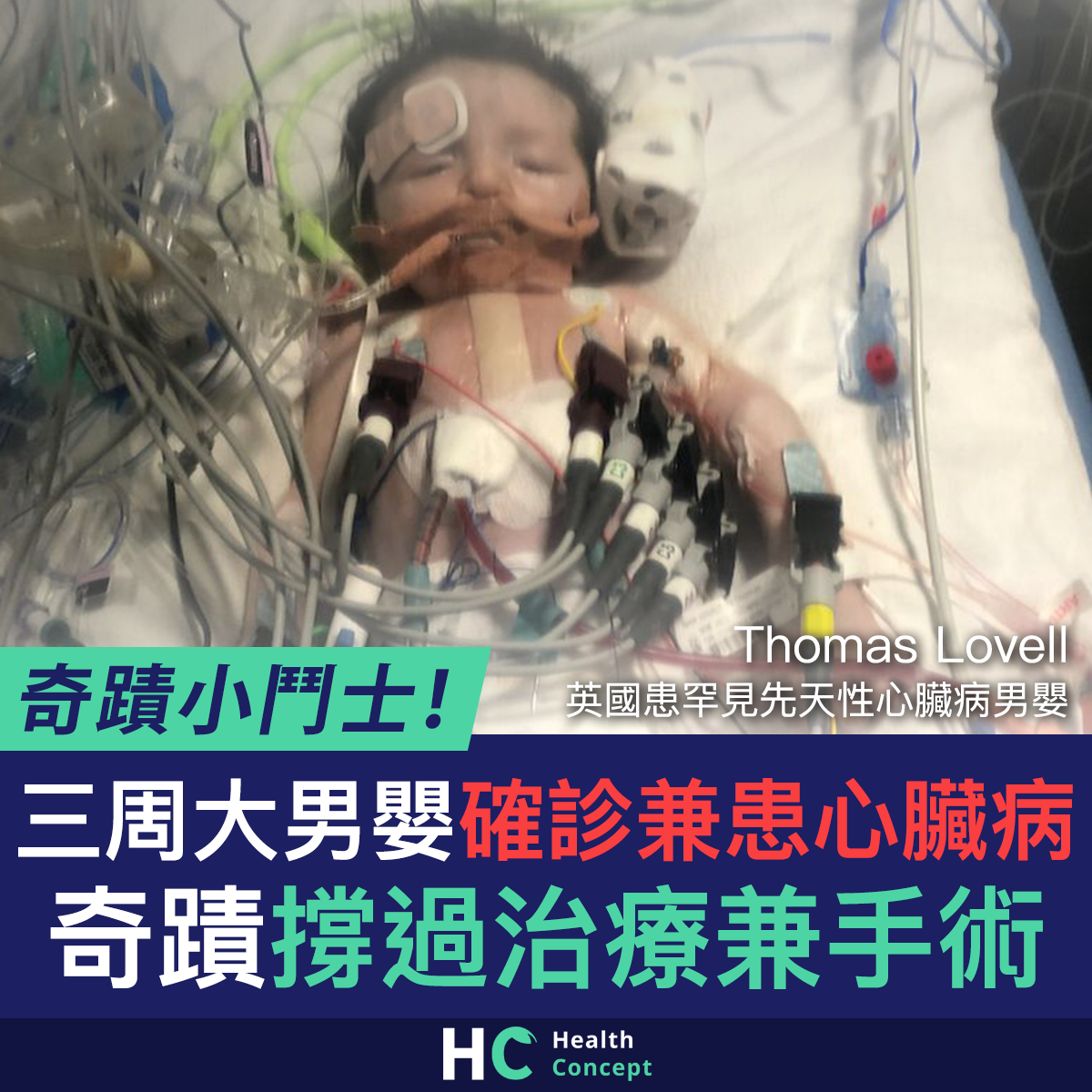 【#新型肺炎】三周大男嬰確診兼患心臟病 奇蹟撐過治療兼手術