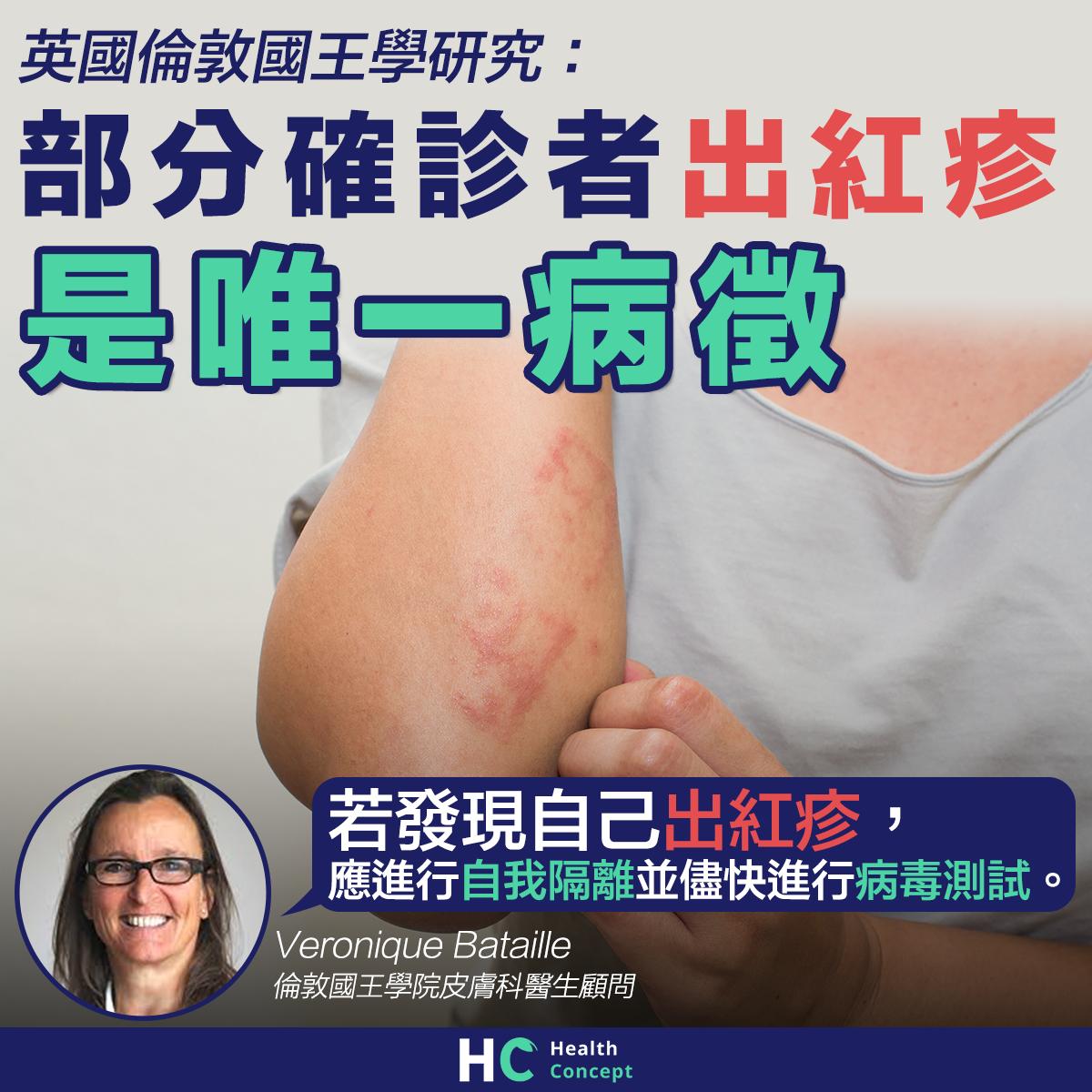 【#新型肺炎】英國研究:部分確診者出紅疹是唯一病徵