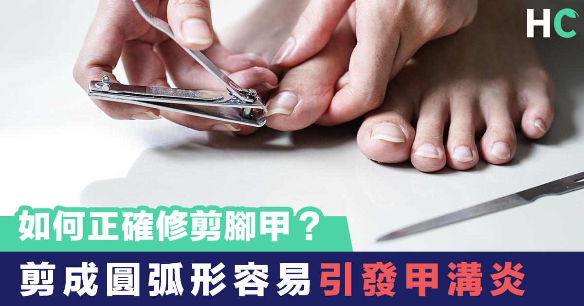 剪成圓弧形容易引發甲溝炎