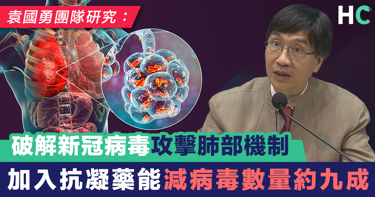 袁國勇團隊破解新冠病毒攻擊肺部機制 加入抗凝藥能減病毒數量約九成