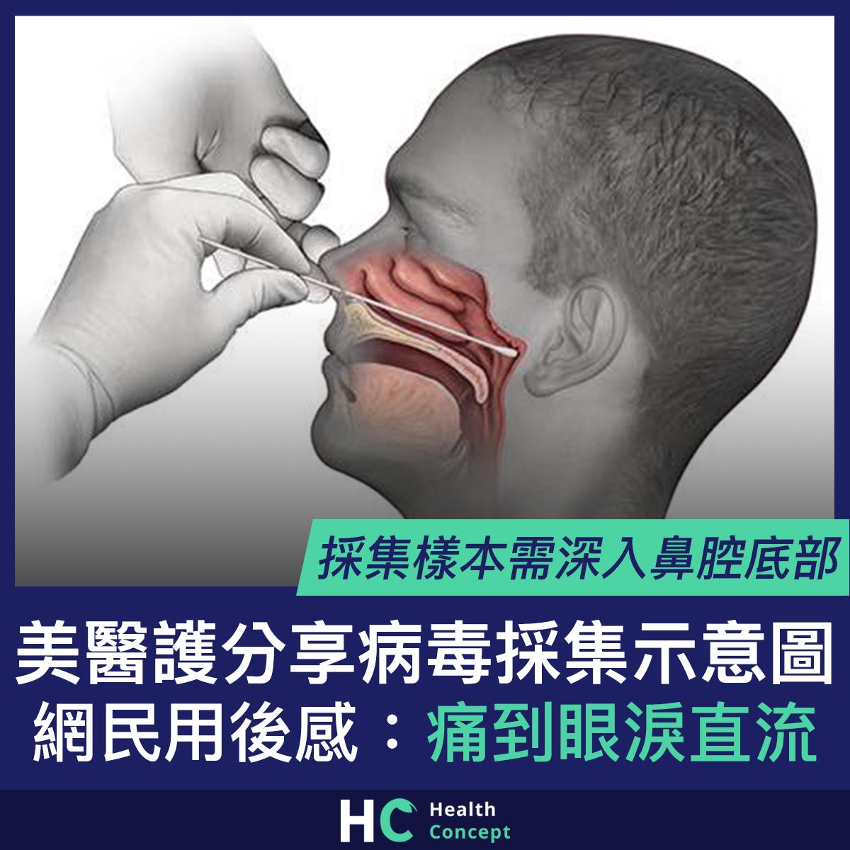 【#武漢肺炎】美醫護分享病毒採集示意圖 網民用後感:痛到眼淚直流