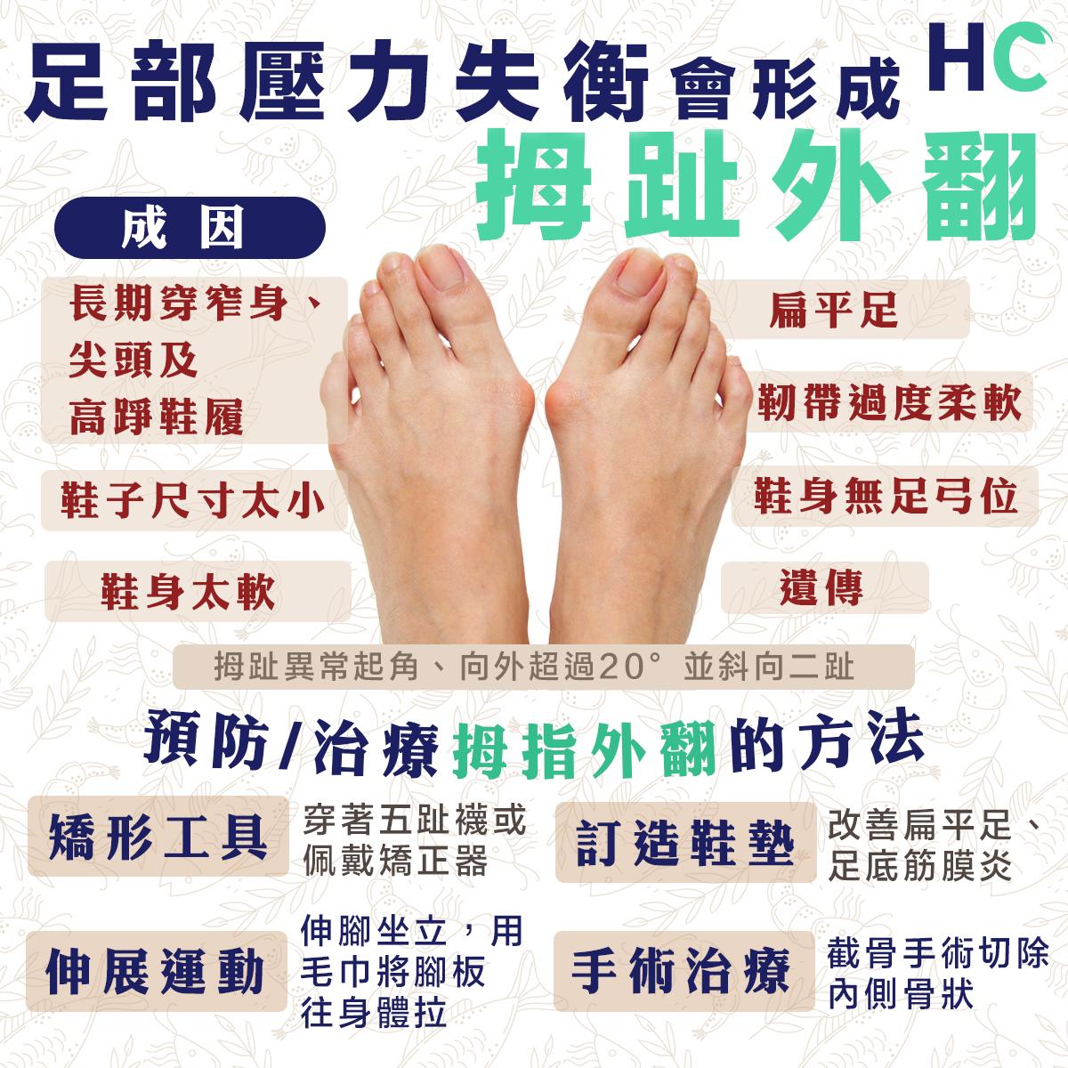 足部壓力失衡造成拇趾外翻 包括著錯鞋、扁平足