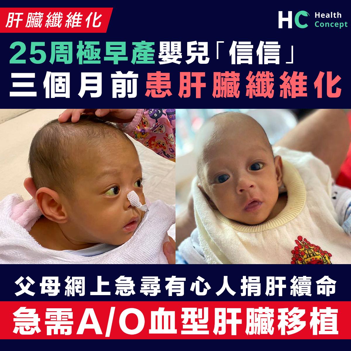 25周極早產嬰兒「信信」 患肝臟纖維化求有心人捐肝
