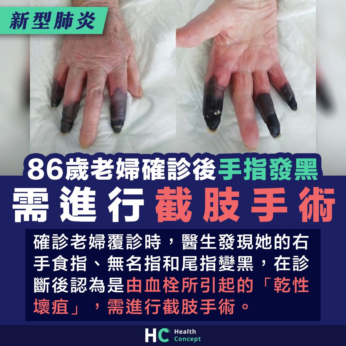 86歲老婦確診後手指發黑 需進行截肢手術