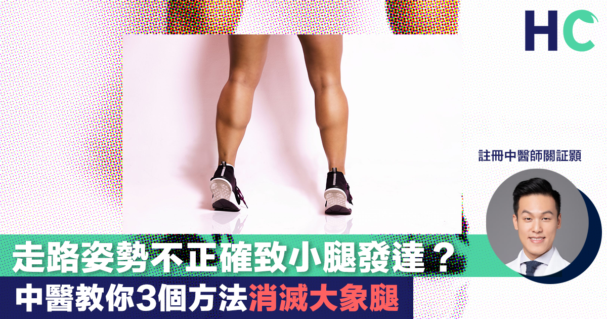 【#健康資訊】走路姿勢不正確致小腿發達? 中醫教你3個方法消滅大象腿