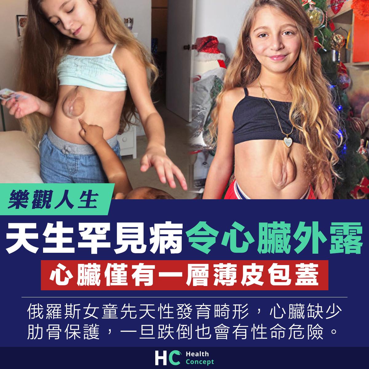 女童患天生罕見病 心臟外露僅有一層薄皮包蓋