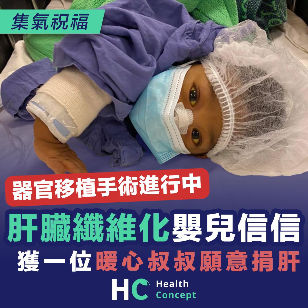 肝臟纖維化嬰兒信信 正進行器官移植手術