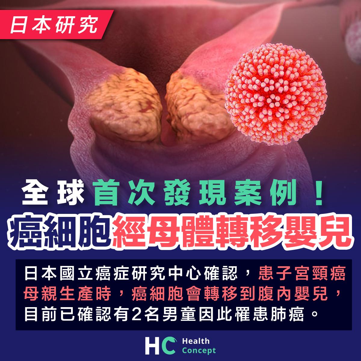 全球首次發現案例! 癌細胞會經母體轉移嬰兒