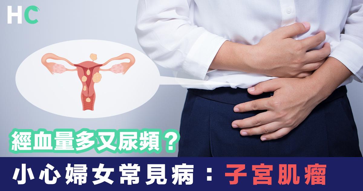 子宮示意圖及因病楚而按著子宮