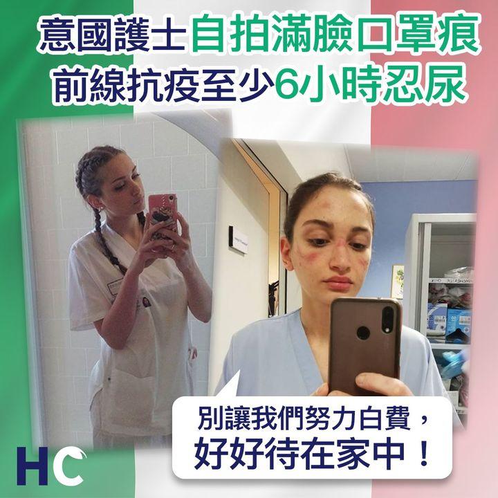 【#武漢肺炎】 意國護士自拍滿臉口罩痕 前線抗疫至少6小時忍尿