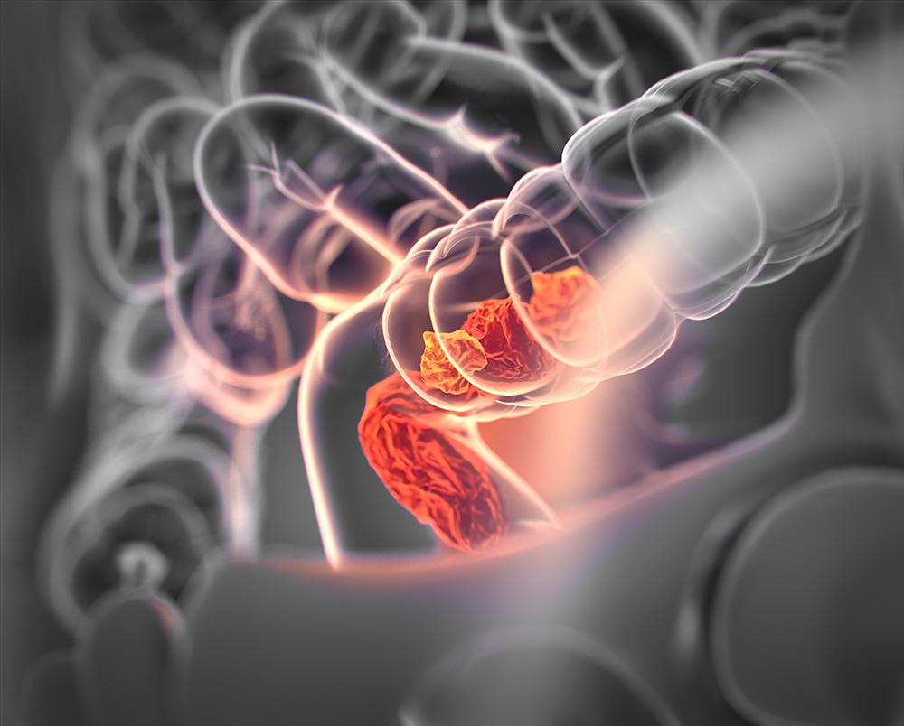 大腸直腸癌